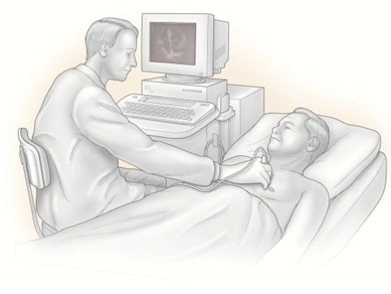 VHFC0022_What_is_an_echocardiogram_image1.png